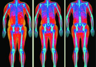 Body Composition Scans – What Really Works?