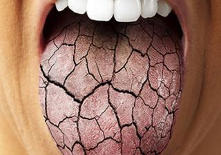 Why You Get a Dry Mouth Before a Big Event
